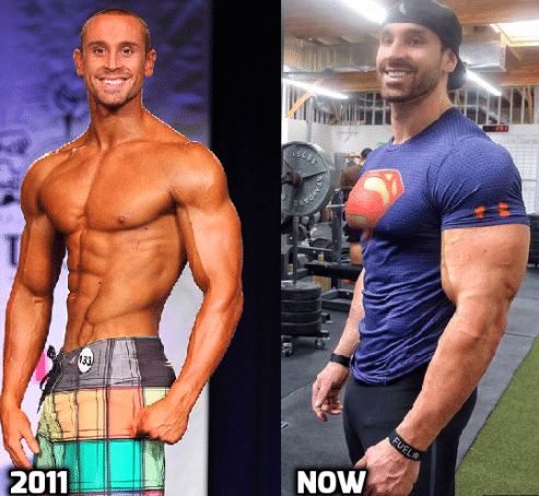 Is Bradley Martyn On Steroids Or is He Natural?