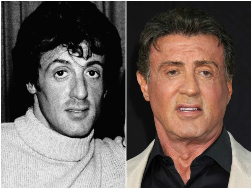 sylvester stallone steroids face