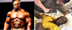 Ronnie Coleman surgery