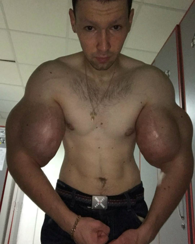 """Kirill Tereshin, The """"Synthol Kid"""" Gets Injections In His Cheeks! 1"""